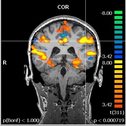 Coronal for Cognition and Neuroscience