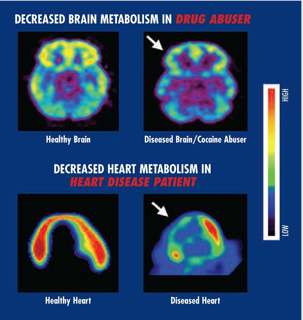 Brain and Heart Metabolism